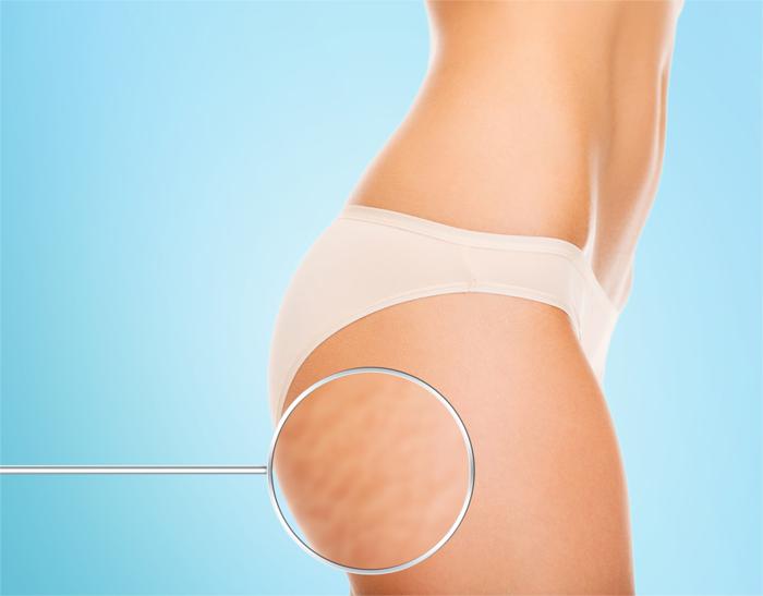 Sprawdzony Zabieg Na Cellulit Icoone Portal O Cukrzycy